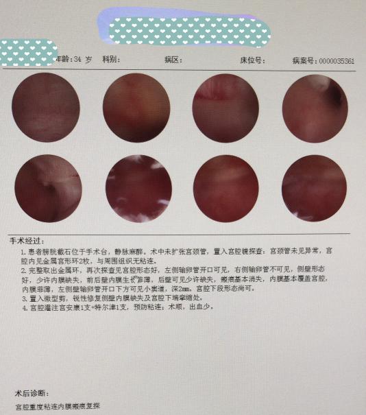 子宫内膜薄,有瘢痕,宫腔镜取环后